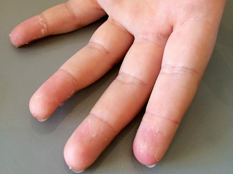 Sådan ser fingrene ud på ni-årige Thilde Mai, som hver dag skal stikke sig i fingrene otte til 10 gange for at måle sit blodsukker. Med den nye glukosemåler på markedet behøver man ikke at stikke sig i fingrene otte til10 gange om dagen, men måske i stedet 1 enkelt gang om ugen eller hver 14 dag. Privatfoto