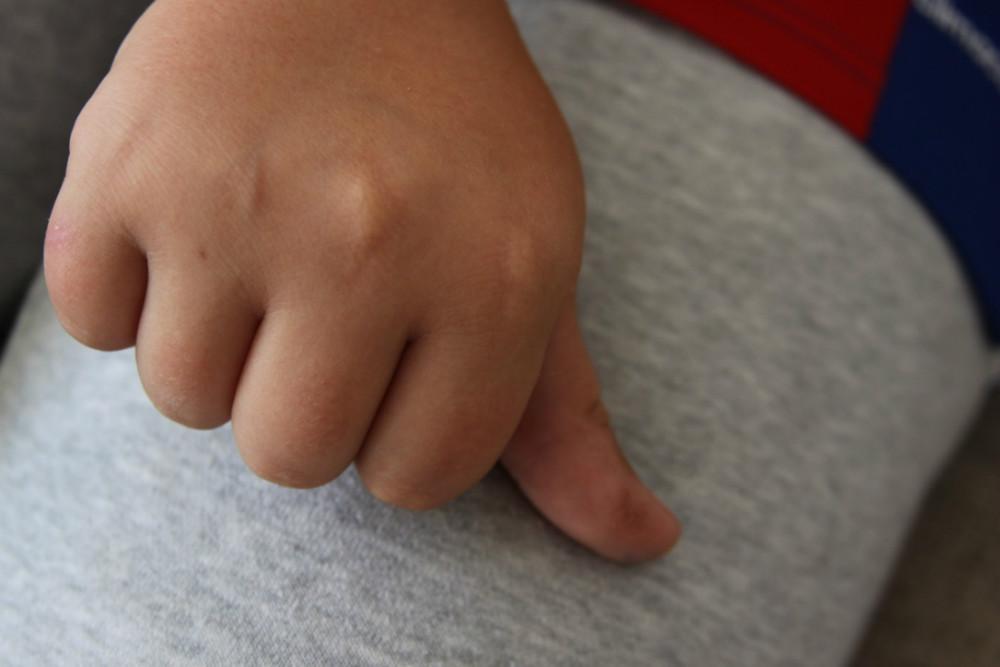 Robin Hoffmann må stikke sig i hånden mange gange dagligt pga. diabetes. Det resulterer i følelsesløshed og smerter i fingrene. Foto: Gitte Korsgaard.