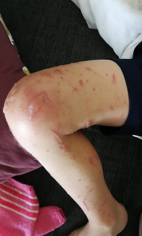 Flere elever har fået sår og blærer på kroppen efter kontakt med den gule vilde pastinak. Privatfoto